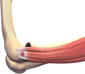 Lateral Epicondylitis / Tennis Elbow